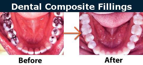 Dental Composite Fillings Before After