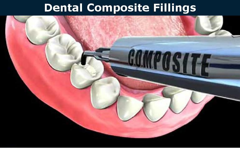 Dental Composite Fillings