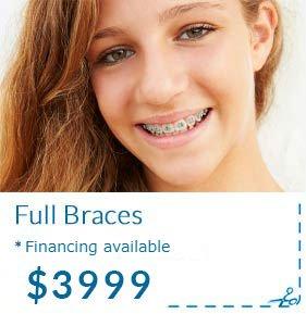 Full Braces Cost