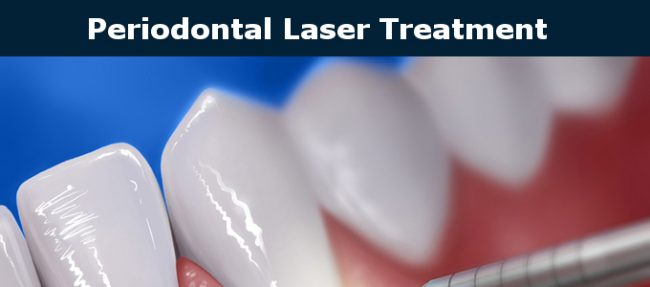 Periodontal Laser and Arestin Treatment