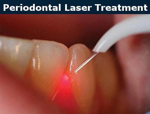 Periodontal Laser Treatment