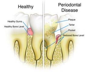 Healthy vs Gum Disease Tooth