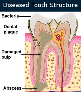 Diseased Tooth Structure