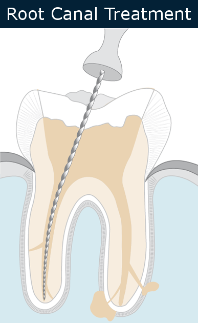Root Canal Cleaning