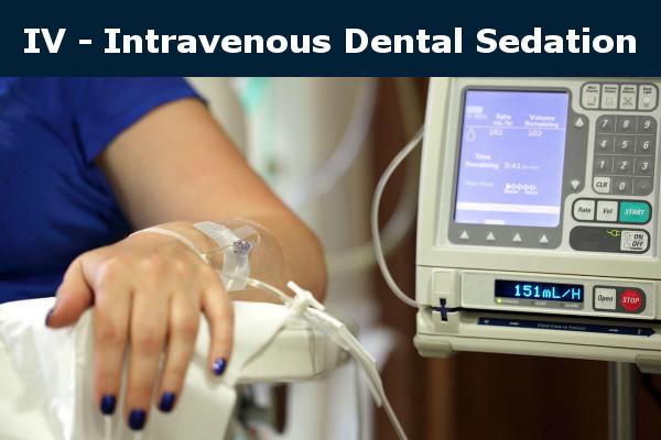Intravenous IV Dental Sedation