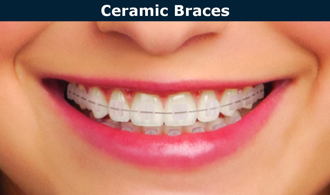 Ceramic braces in Burbank