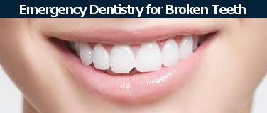 Broken tooth emergency dentostry