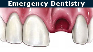 Knocked Out Tooth Emergency Dentistry