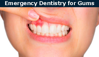 Swollen gums dental emergency