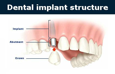 Dental implant stucture