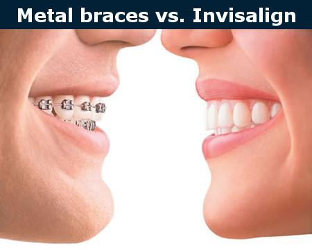 Metal braces vs. Invisalign
