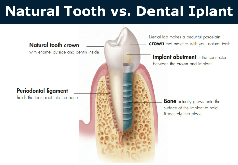 Healthy tooth vs dental implant