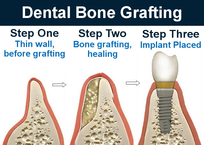 Bone Grafting Burbank for Teeth