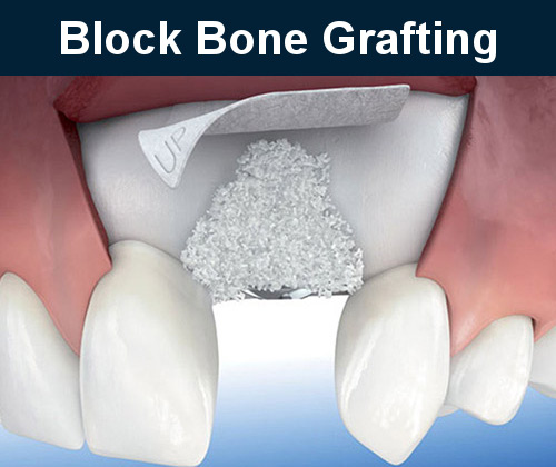 Block Bone Grafting Burbank