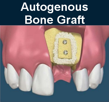 Autogenous bone grafting