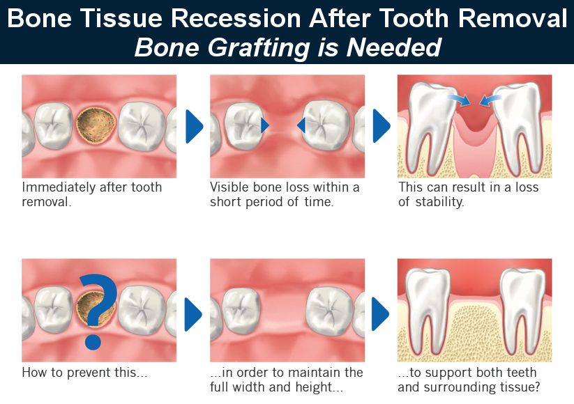 When Is Bone Grafting Used?