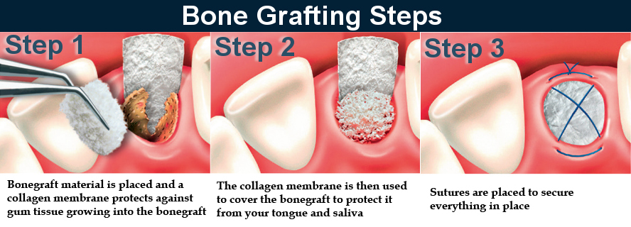 Bone Grafting Steps