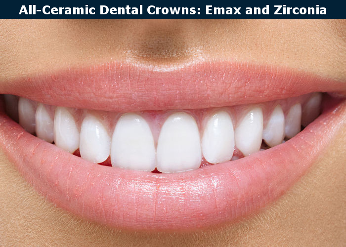 Ceramic Em-max and Zirconia Crowns