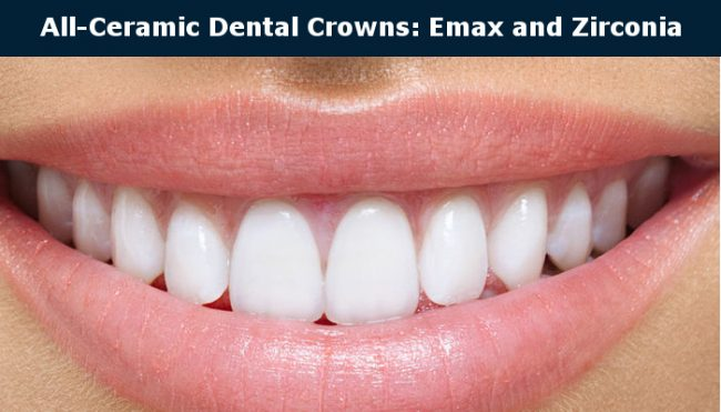 All Cermic Crowns: E-max and Zirconia