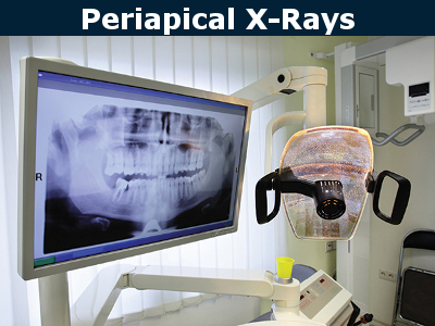 Periapical X-Rays