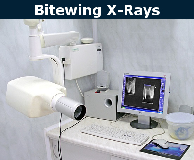 Bitewing X-Rays