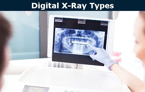 Digital X-ray types