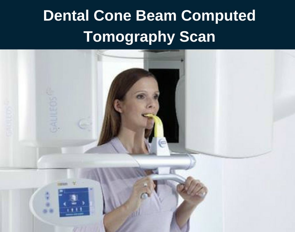 Dental Cone Beam Computed Tomography Scan