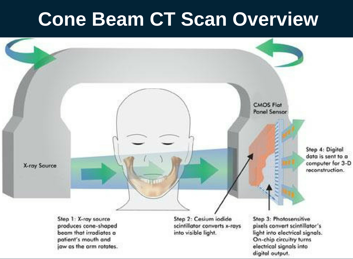 Cone Beam CT Scan Overview