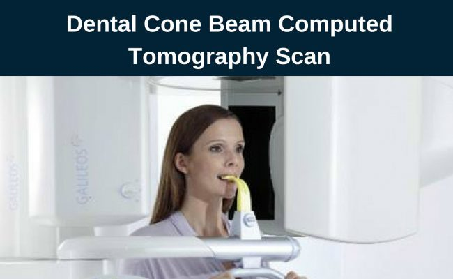 Cone Beam CT scan In Burbank