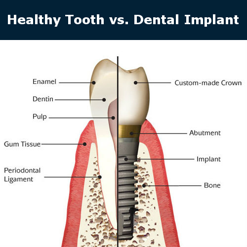 Helthy tooth vs dental implant