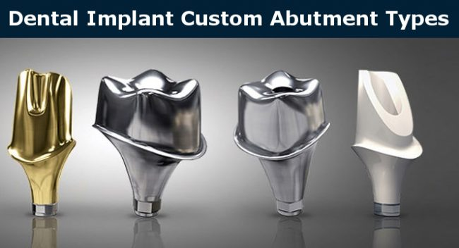 Custom implant abutments