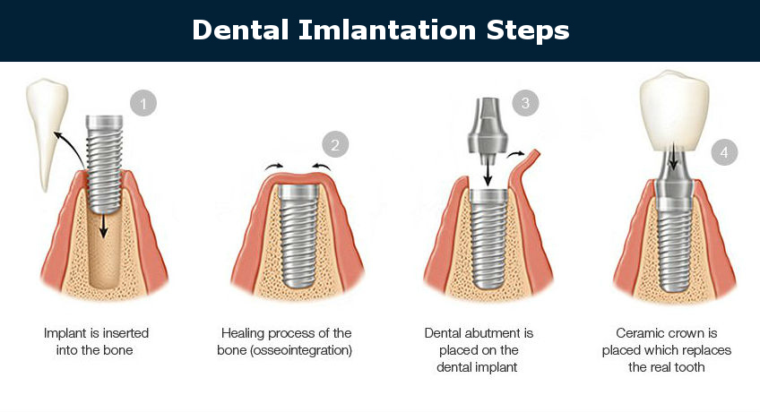 Dental implantation steps