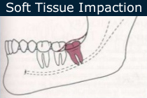 Soft Tissue Impaction Extraction