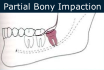 Partial Bony Impaction Extraction
