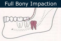 Complete Bony Impaction Extraction
