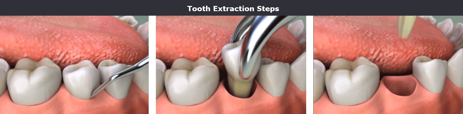 Tooth extraction steps