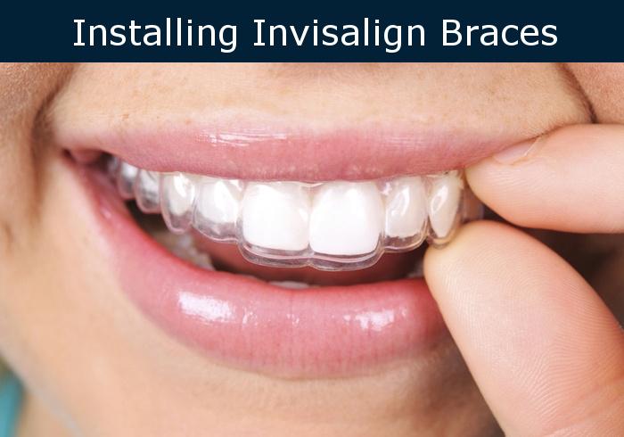 installing invisalign braces