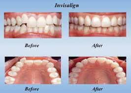 invisalign imageages of before and after