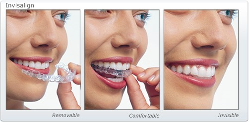 how do you use invisalign