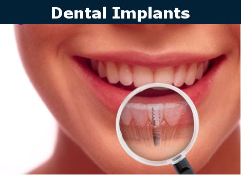 Cosmetic Dentistry Dental Implants