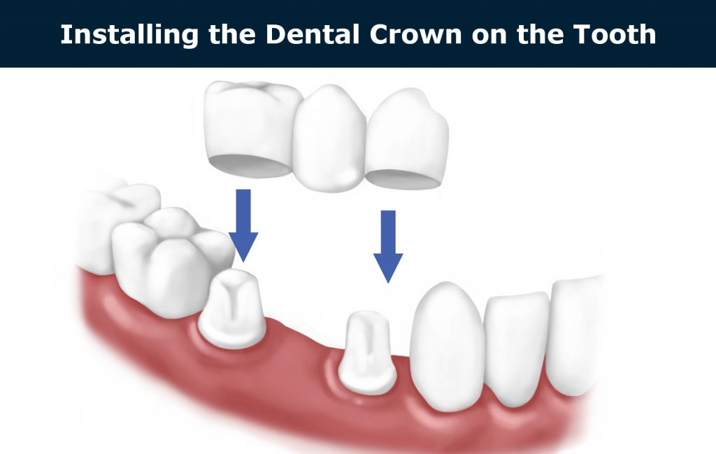 installing the dental crown