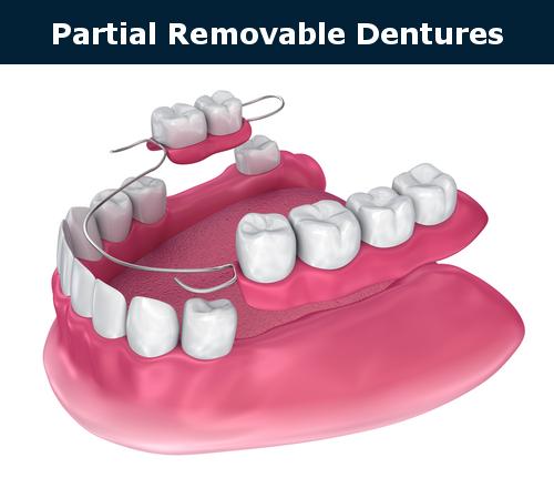 Partial removable denture