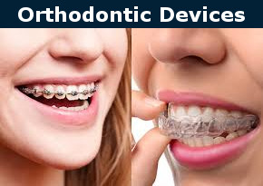 Orthodontic Devices