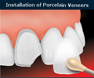 installation of porcelain veneers