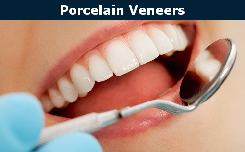porcelain veneers at office