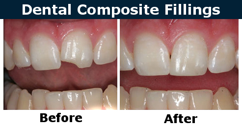Composite (White) Fillings before after