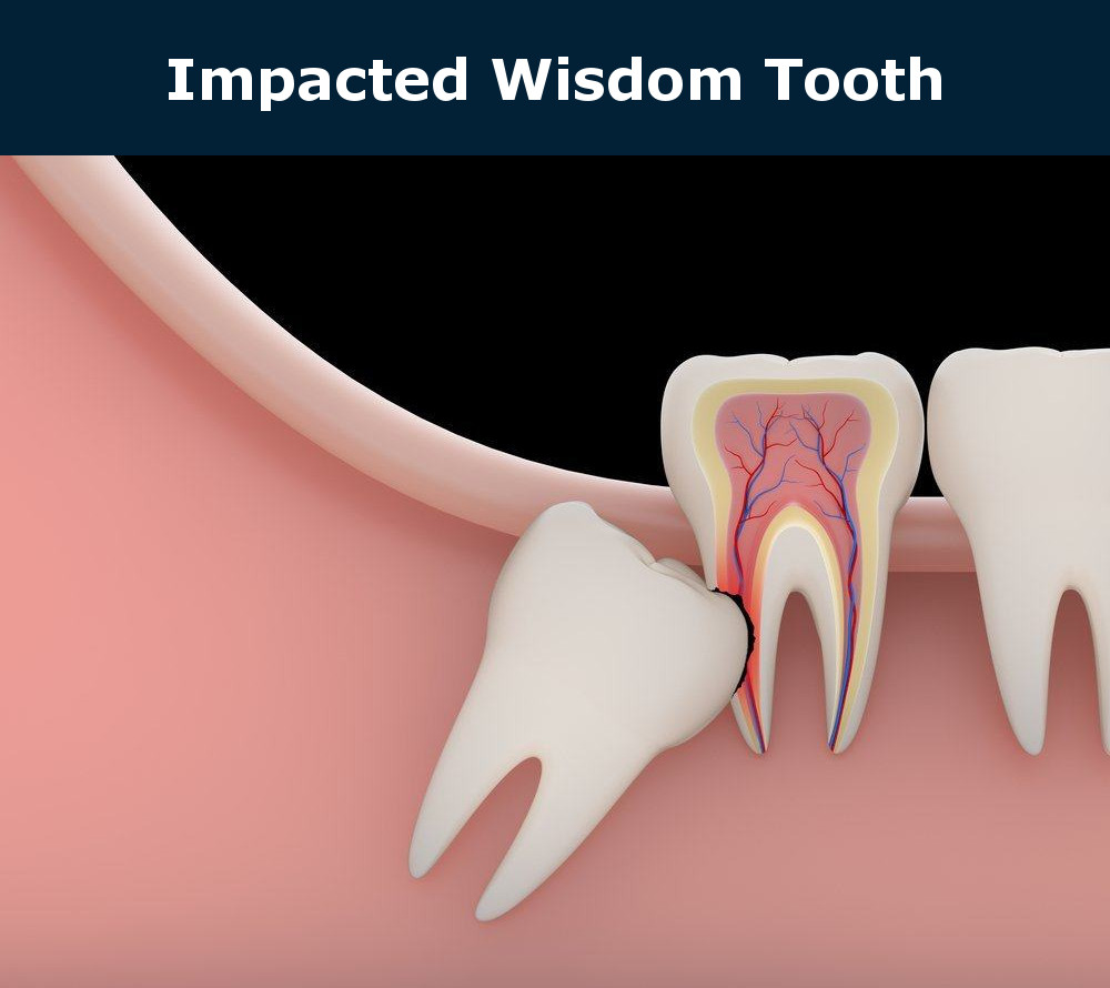 Impacted Tooth Extraction