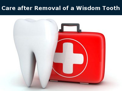 Care after Removal of Wisdom Teeth
