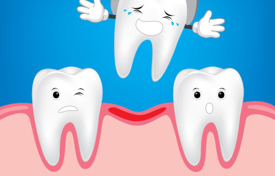 Teeth loss causes and prevention