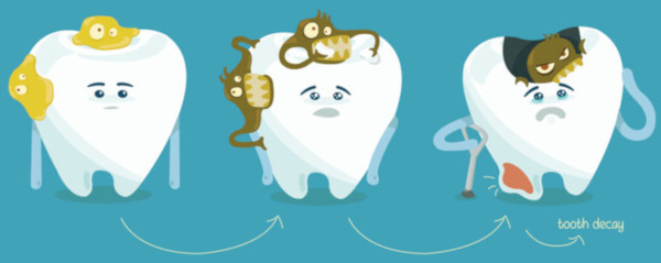 tooth decay and the tooth loss
